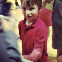 "You can see where Obama signed this boy's cast with ""BO."""